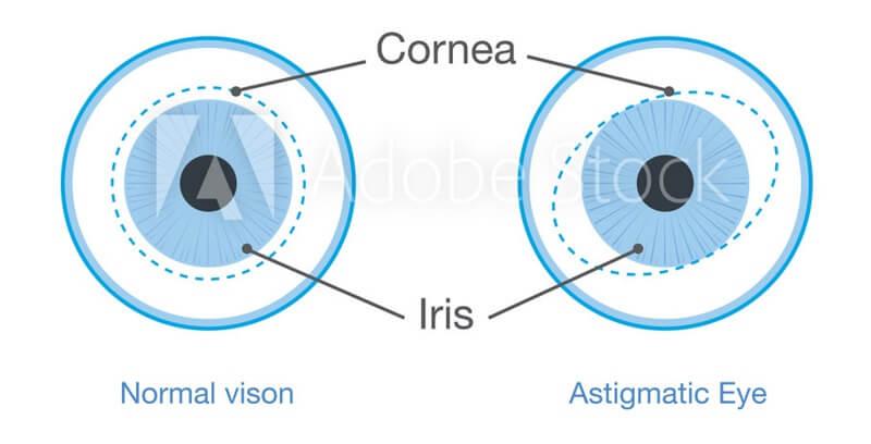 eye-problem-diagram